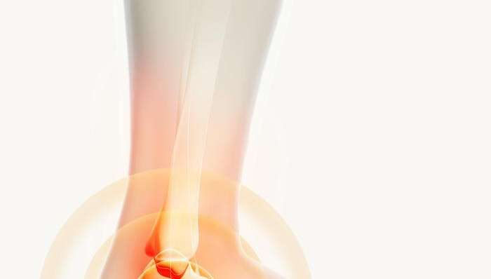 How to Avoid Ankle Injuries